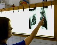 TBC-s egyetemistákat találtak Szegeden